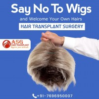 Hair Transplant in India asghairtransplant